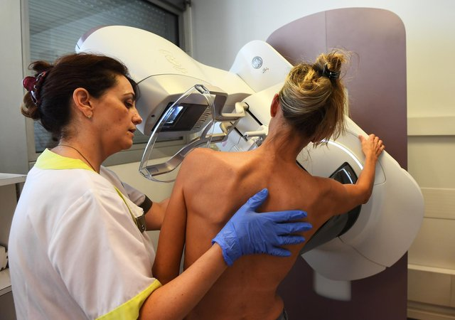 Women over the age of 50 are currently offered breast screening every three years. Photo: ANNE-CHRISTINE POUJOULAT/AFP via Getty Images